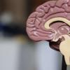 在对45,000名成年人的研究中 有160个基因与大脑萎缩有关