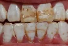 自己的牙齿突然掉了一小块这是怎么回事呢