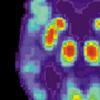 临床前研究发现,新疫苗可能有助于阻止老年痴呆症的发展