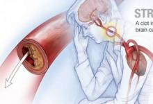 血液中的蛋白质可预测预后 中风后恢复