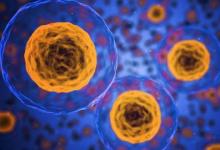 科学家发现治疗子宫内膜异位症的可能遗传靶标