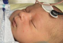 听力测试可能会发现新生儿自闭症