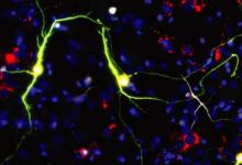 研究人员通过操纵线粒体来改善神经元重编程