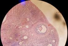 冷冻的鸡蛋和卵巢组织可以帮助妇女在乳腺癌后怀孕