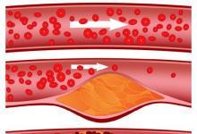 研究发现肠抑素激素水平与动脉硬化有关