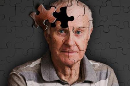 唐氏综合症患者与阿尔茨海默氏病的早期迹象