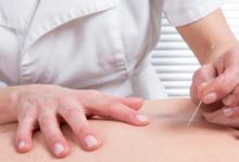 研究发现针灸有助于正常化尿酸水平与减少痛风和肾脏损害的风险