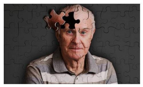 JAX和UMaine领导团队发现了阿尔茨海默氏症和Dlgap2之间的新联系