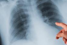 科学家开发出可以插入患者肺部的微型探针 以便快速诊断