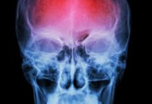 新型的脑部治疗手环利用振动帮助中风受害者更快康复