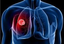 肺癌手术后女性的存活率更高