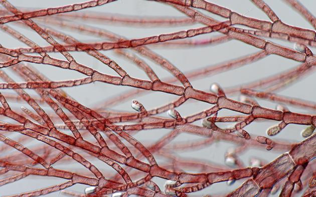 研究发现脆弱放线放线杆菌对骨关节炎的保护作用