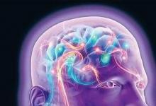 研究人员开发出低成本便携式的脑成像扫描仪