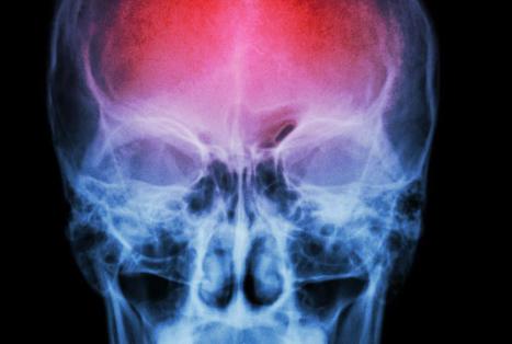 研究人员发现敲击疗法可帮助患者恢复身体机能