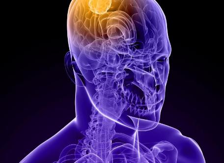 番石榴可以减轻炎症并改善脑缺血的神经功能缺损