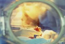 早产与儿童时期住院的更大风险有关