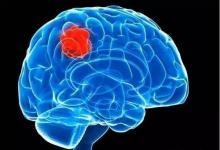 地塞米松可能降低针对胶质母细胞瘤免疫检查点抑制剂的疗效