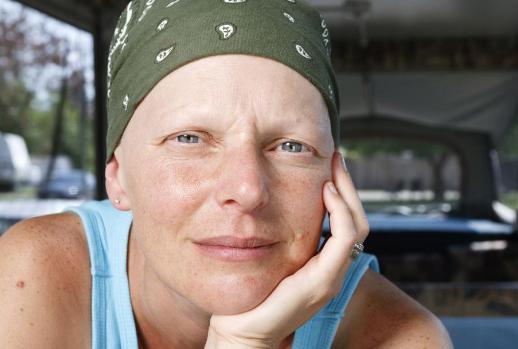 新研究表明早期乳腺癌的化学疗法正在下降