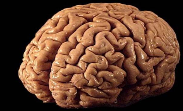 科学家正在培养数百个人类大脑进行测试