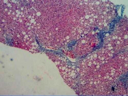 新的传感器可以检测到疤痕或脂肪肝组织