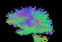 大数据分析表明大脑连接在癫痫相关萎缩中的作用