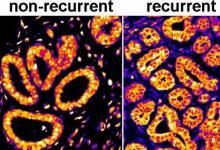一种将传统病理学与机器学习相结合的新工具可以预测乳腺癌复发