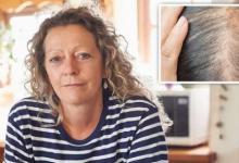 激素头皮滴剂可改善更年期妇女的头发密度