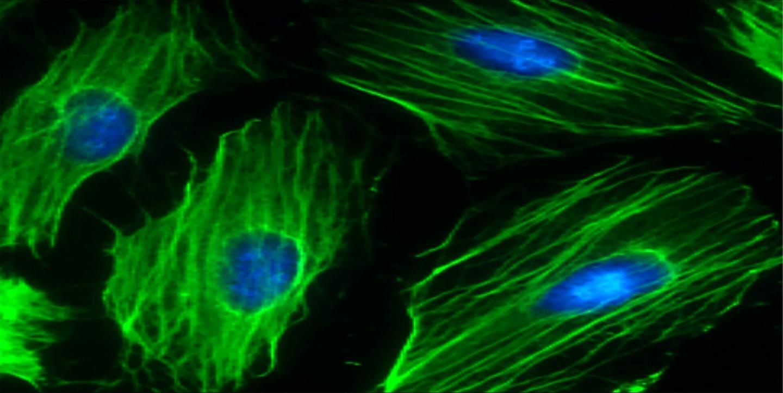 研究人员用基因疗法模仿运动的效果