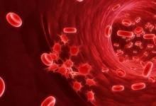 将Venetoclax添加到标准疗法中显示出在高危骨髓性血液癌中的前景