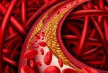 Los Robles Health System在神经血管临床试验中处于领先地位