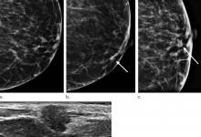 数字化乳房断层融合术可改善浸润性癌症的检测