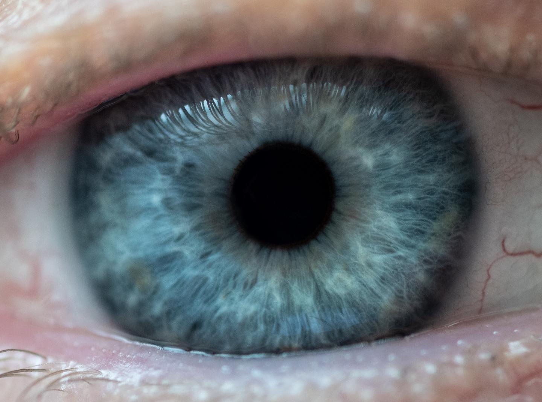 水凝胶无需药物或手术即可开辟青光眼治疗的新途径