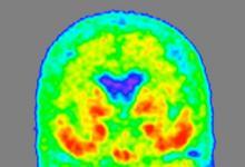 研究人员在围绕大脑和脊髓的液体中发现的一种新型的阿尔茨海默氏病蛋白