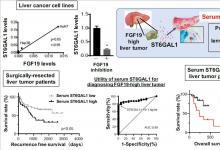 研究人员发现可以通过血清生物标记物鉴定出的某些肝癌亚型