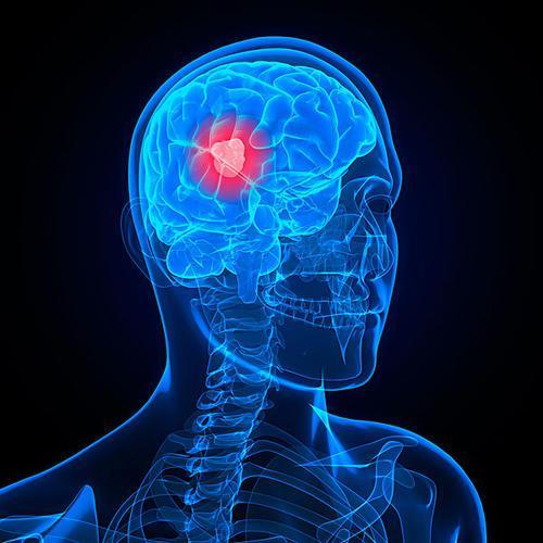 研究人员发现癌症扩散到大脑的关键驱动力