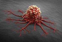 进化可能归咎于人类晚期癌症的高风险