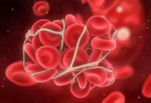 血液和财富如何预测未来的残疾