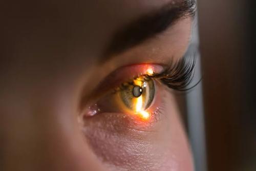 空气污染可能与青光眼风险增加有关
