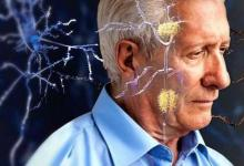 电磁浴帽在阿尔茨海默氏症早期试验中显示出希望
