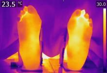 较高的体温仍然是缓解类风湿关节炎患者症状的一个因素