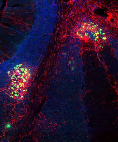 寨卡病毒可在小鼠大脑中长期保留并会导致长期的神经和行为后果