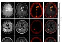 PET成像示踪剂被证明对治疗中枢神经系统B细胞淋巴瘤有效