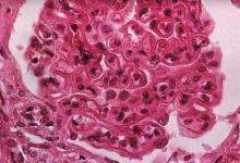 匹兹堡科学家发现罕见炎性疾病的遗传风险