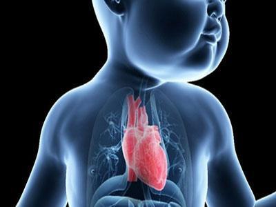 研究揭示了与先天性心脏病有关的基因网络