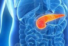 源自雷神藤的化合物可以帮助胰腺癌患者