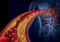 宾夕法尼亚州立大学的工程师发现一氧化氮表达神经元与动脉扩张之间的联系
