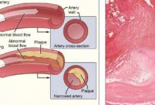 长的非编码RNA可能在心血管疾病中起关键作用