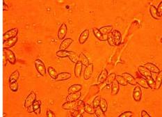 研究人员首次发现并描述了两种真菌