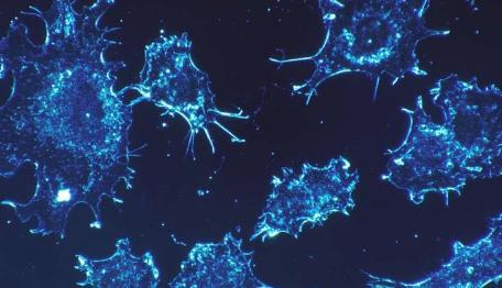 乳腺癌研究发现巨噬细胞如何导致治疗性弱点
