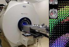 机器智能加速了大脑映射的研究